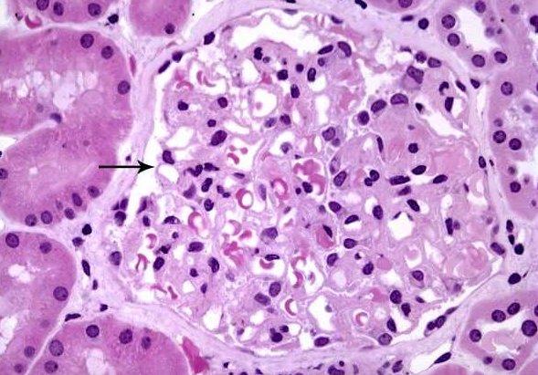 nefropatia membranosa1.jpeg