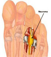 neuroma di Morton1.jpg
