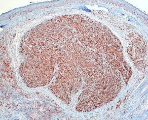 neuroma di Morton21.jpg