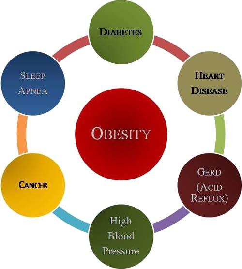 Obesità: un grave problema da controllare