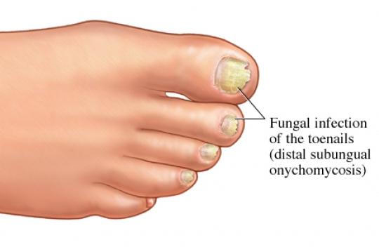 Onicomicosi: cause, sintomi e cure