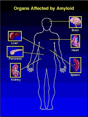 organi colpiti da amiloidosi21.jpg