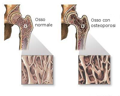 osso normale e osso con osteoporosi.jpg
