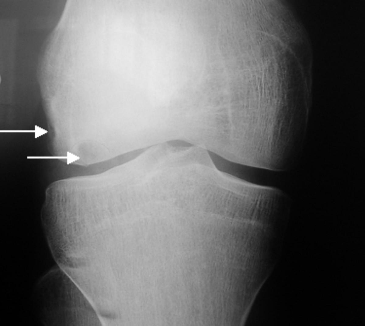 osteocondrite dissecante1.jpg
