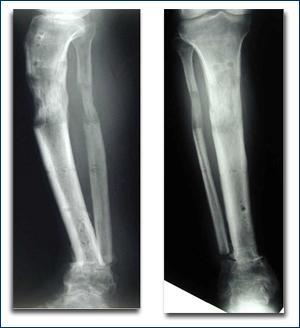 osteomielite acuta1.jpg