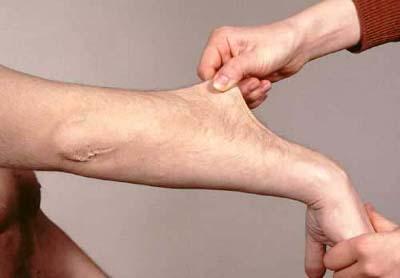pelle elastica nella sindrome di Ehlers-Danlos.jpg