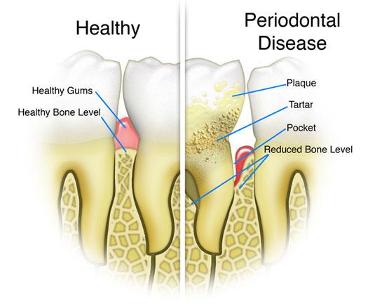 La parodontite:segni, sintomi, cause e cure