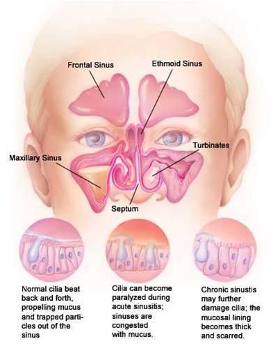polipi nasali.jpg