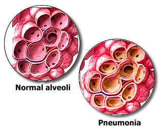 Le polmoniti: cause e sintomi