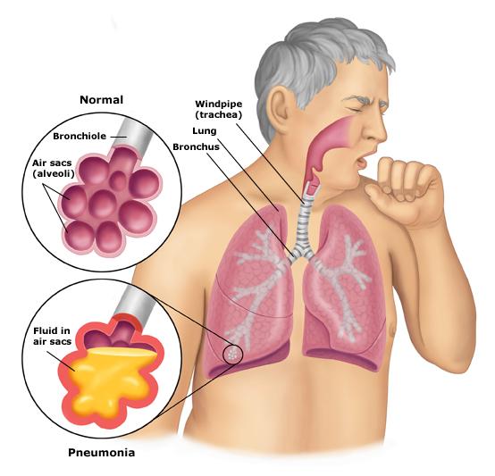 polmoniti.jpg