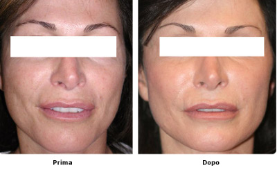 Laser skin resurfacing : procedura, risultati e aspettative