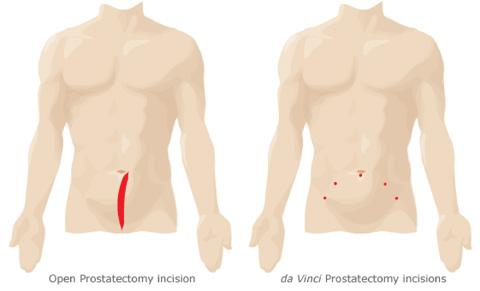 Prostatectomia a cielo aperto : procedura, rischi, convalescenza e benefici