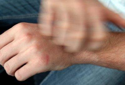 Il prurito: un fastidioso problema