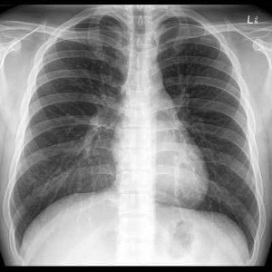 radiografia del torace.jpg