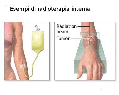 radioterapia interna.jpg
