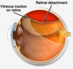 retina staccata.jpg