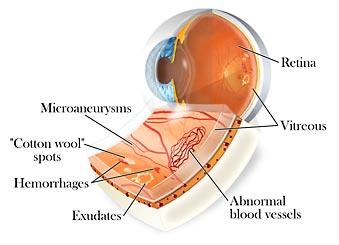 retinopatia.jpg