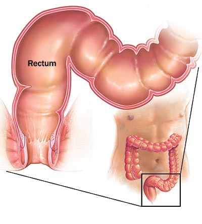 Proctite : sintomi, segni, cause, complicazioni e cure