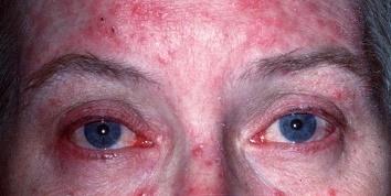 rosacea degli occhi 21.jpeg