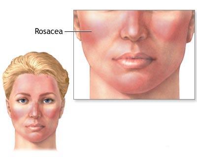 Rosacea oculare : sintomi, cause, diagnosi, cure e consigli