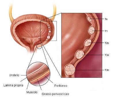 schema del cancro della vescica.jpg