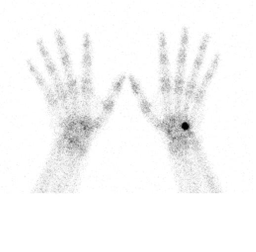 scintigrafia ossea.jpg