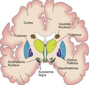 serotonina -immagine della sindrome.jpg
