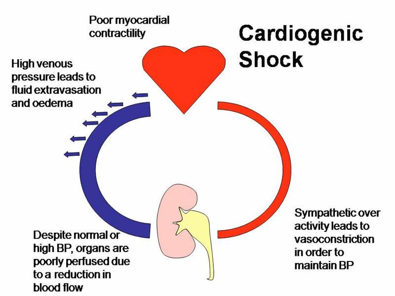 Lo shock cardiogeno: sintomi e pericoli
