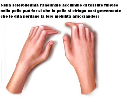 Sclerodermia limitata (sindrome CREST) : sintomi, cause, diagnosi e cure