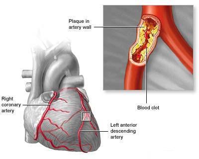 sindrome coronarica acuta1.jpg