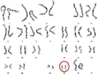 sindrome di DIGeroge-cromosomi.jpg