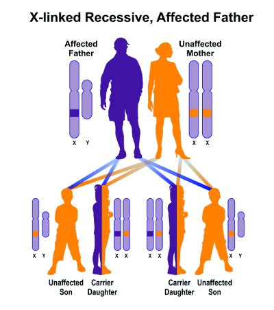 sindrome di hunter x-linked.jpeg