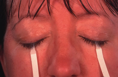 sindrome di sjorgen21.jpg