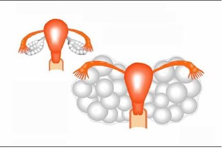 Sindrome da iperstimolazione ovarica : sintomi, cause, diagnosi e cure