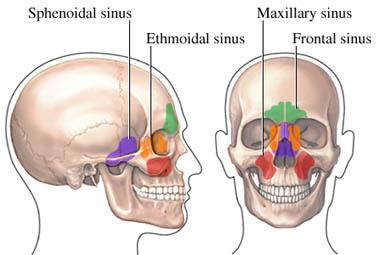 Sinusite cronica: sintomi, cause e terapie
