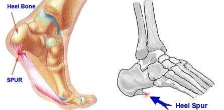 sperone osseo1.jpg