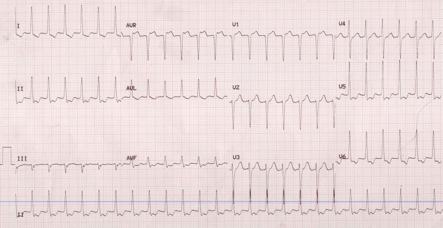 tachicardia.jpg