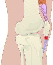 tendinite rotulea2.jpg