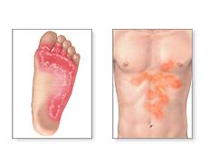 Il piede d'atleta : segni, sintomi, cure e prevenzione