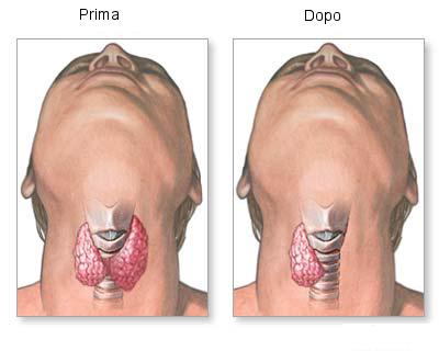 tiroidectomia disegno.jpg