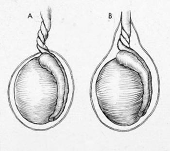 torsione testicolare1.jpg