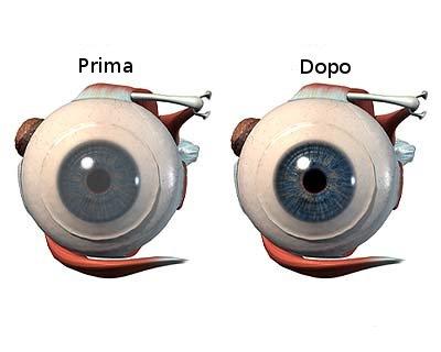Trapianto della cornea : benefici, recupero e rischi
