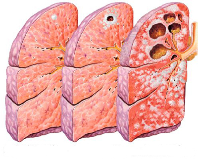 La tubercolosi: sintomi, segni, cure e diagnosi