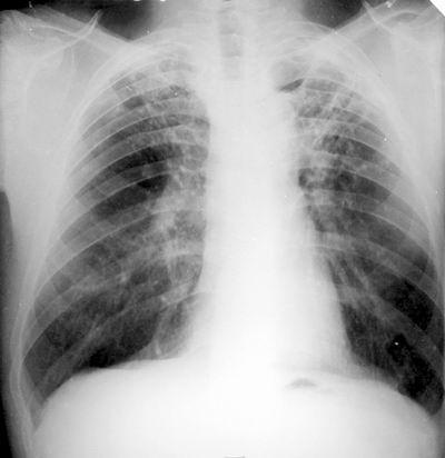 tuberculosi2.jpg