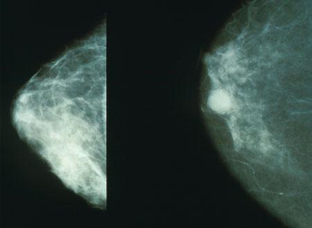 tumore al seno.jpeg