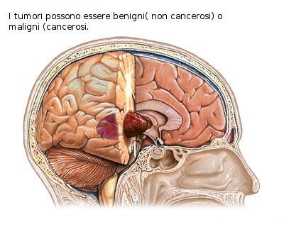 tumori del cervello000.jpg