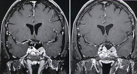 tumori ipofisari.jpg