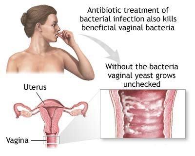 vaginosi batterica 1.jpg