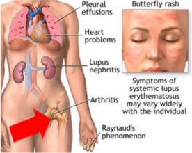 Il lupus: sintomi,cause,diagnosi e cure