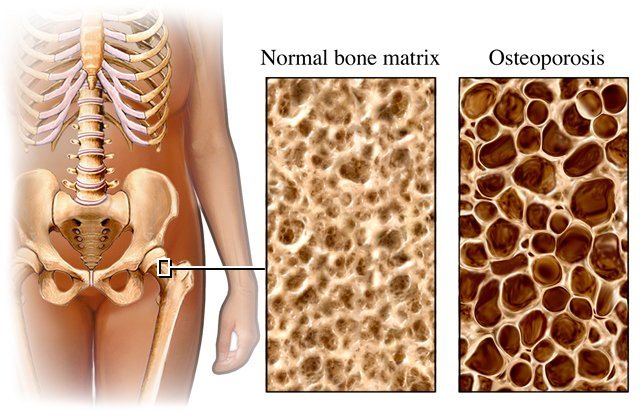 osteoporosi immagine esplicativa.jpg